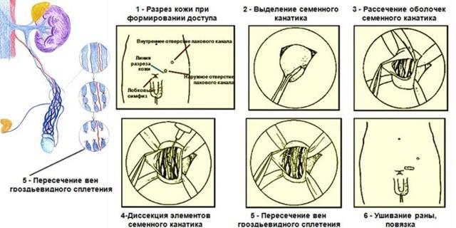 Операция мармара при варикоцеле: показания и противопоказания, преимущества и недостатки, техника проведения, осложнения, стоимость