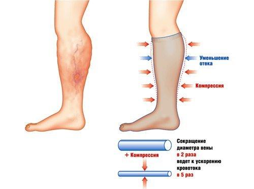 Компрессионное белье при варикозе: показания и противопоказания, виды, как правильно подобрать и как носить, классы компрессии, отзывы