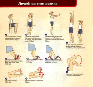 Упражнения при варикозе нижних конечностей: гимнастика, зарядка на работе, лечебная физкультура (ЛФК)