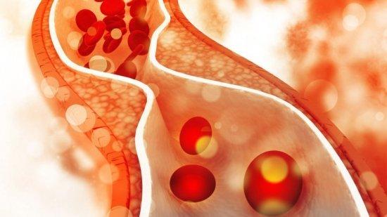 Розувастатин и Аторвастатин: что лучше?