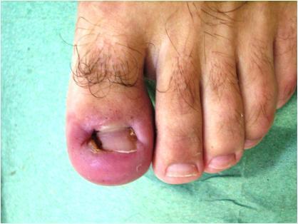 Ногти при диабете сахарном на ногах: грибок, вросшие, чернеют - лечение, фото