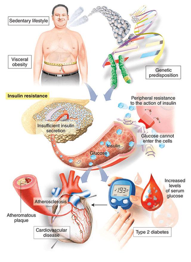 Фасоль при диабете сахарном 2 и 1 типа: можно ли створки. стручки, белую, красную, консервированную, рецепты