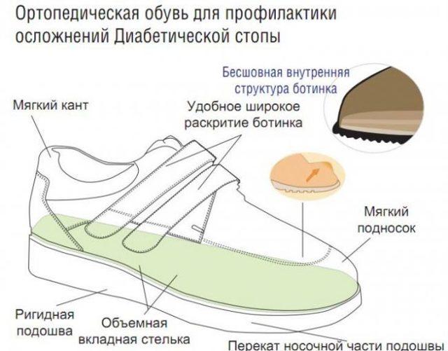 Обувь для диабетиков: критерии выбора диабетической обуви