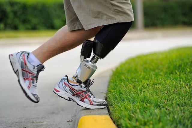 Ампутация при диабете сахарном: гангрена ноги, пальца, выше колена, сколько живут, прогноз. последствия, реабилитация, заживление