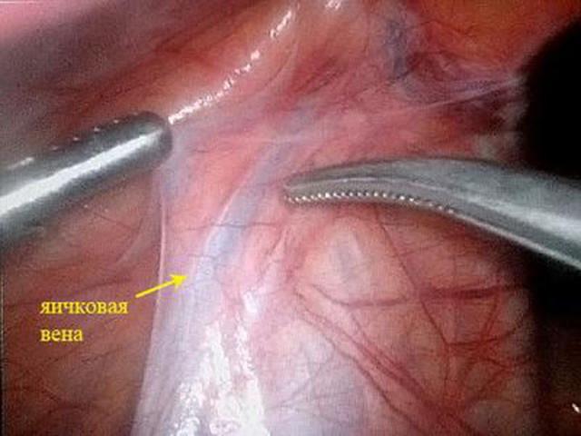 Варикоцеле 1 степени у мужчин и подростков: лечение (операция, без операции)