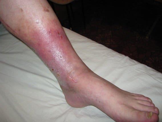 Варикозный дерматит: причины, симптомы, стадии, лечение (народное, медикаментозное, оперативное), осложнения, профилактика