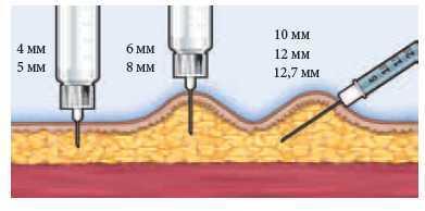 Инсулиновый шприц: ручка, иглы, деления, сколько миллилитров, как пользоваться