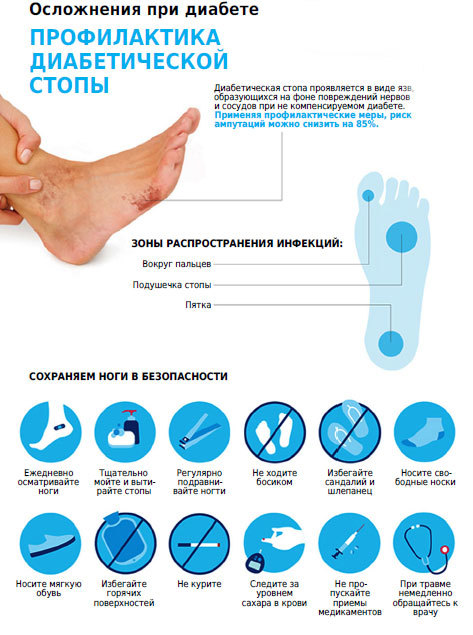 Ноги при сахарном диабете (пальцы, стопы): лечение, язвы, гангрена, раны, отеки, ампутация, пятна, онемение, чернеют, мерзнут, болят, горят