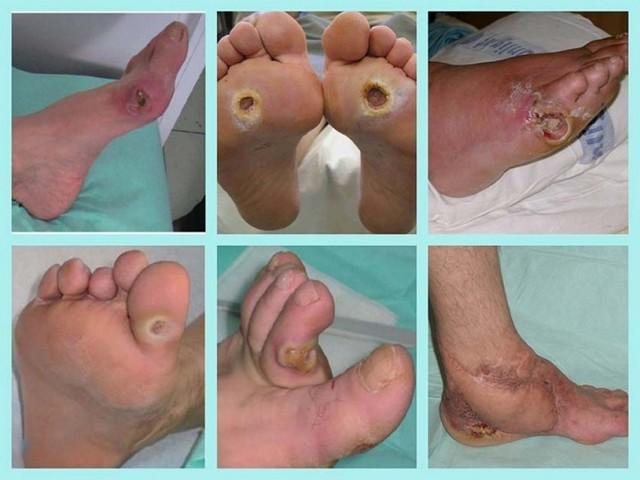Диабетическая стопа: фото начальной стадии, лечение, симптомы, МКБ-10, препараты, домашние средства