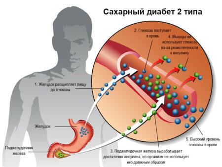 Раки при диабете сахарном 2 и 1 типа: можно ли есть, как готовить, польза и вред