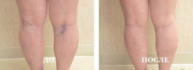Уколы от варикоза вен на ногах: склеротерапия, Трентал, Фибро-Вейн, инъекции гепарина